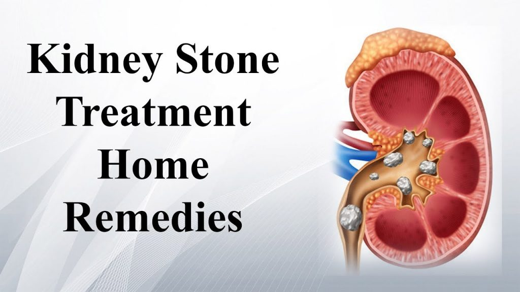 helps-removing-kidney-stone