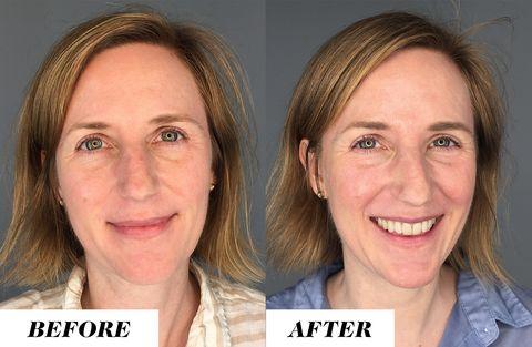 renovate skin- importance of water