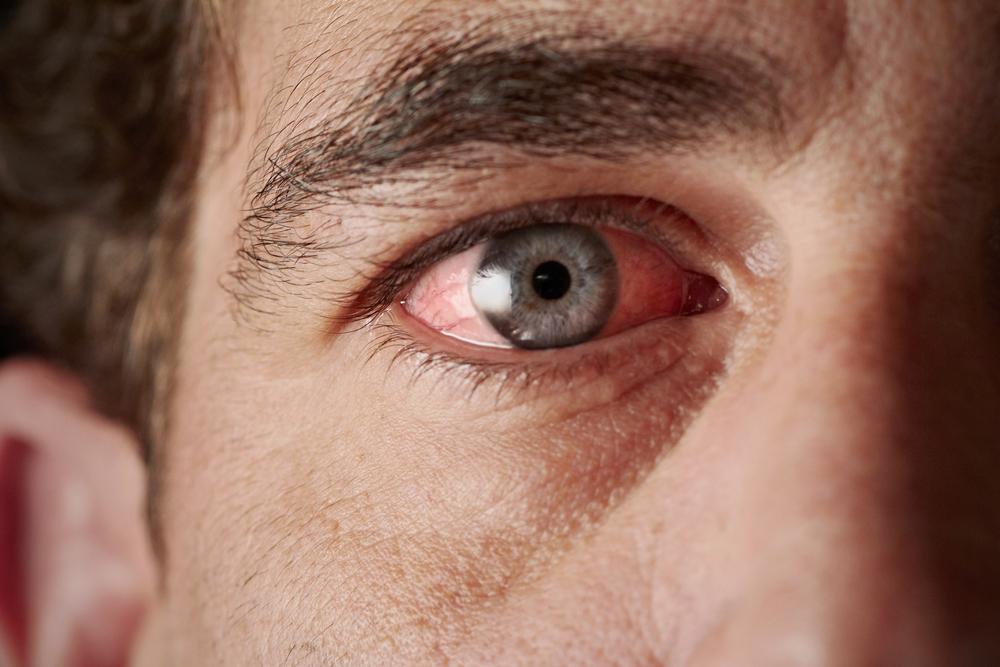Diseases of vitamin D