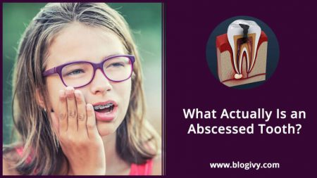 What Actually Is an Abscessed Tooth?